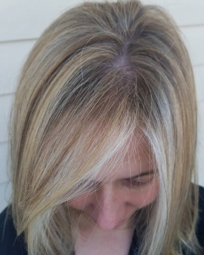 Contourage Baby Lights with Shadow Roots on Thinning Hair
